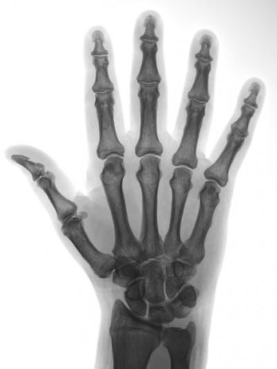 mano biomeccanica - radiografia